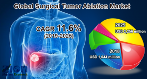 Surgical Tumor Ablation Market