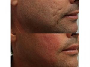 Using filler and subcision for acne scars Dr. Steven F. Weiner, MD