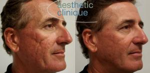 Filler, subcision, and RFM for acne scars, Steven F. Weiner, MD