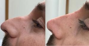 Nose job by Altintas