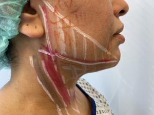Jawline Treatment Mc Aesthetics Dr Altintas