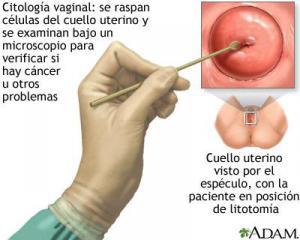 Citología vaginal para cancer cervicouterino