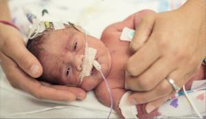 Premature baby in the NICU