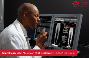 Artificial Intelligece solutions by ImageBiopsy Lab are now part of GE Healthcare's Edison™ Ecosystem