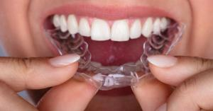 Clear Braces For Teeth Straightening