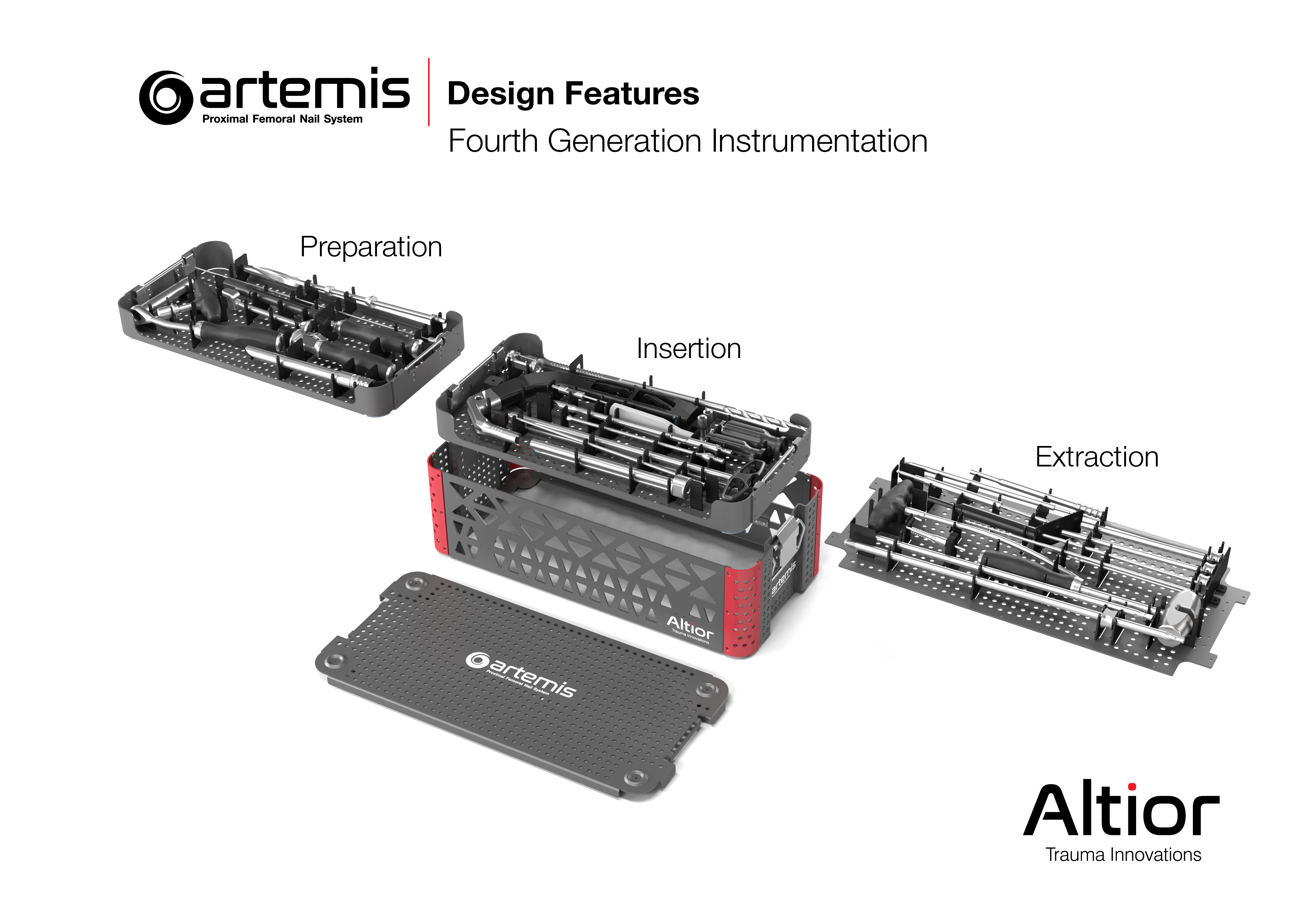 The Artemis System provides a fourth-generation nail with streamlined surgical instruments that allow for simplified implantation and superior patient benefits.  Among other unique design features, the instrument set includes a novel anti-rotation pin tha
