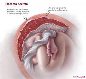 Placenta Accreta Spectrum