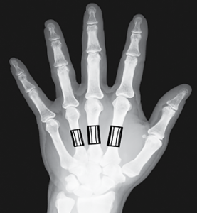 OsteoApp.ai can determine bone density using standard x-rays of the hand and forearm.