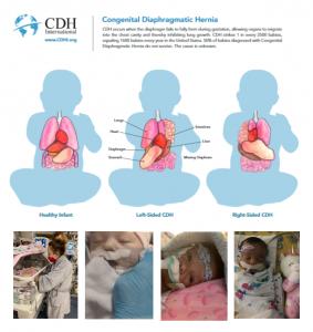 Anatomy of Congenital Diaphragmatic Hernia
