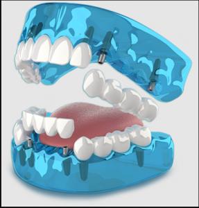 801.590.8647 Dr. Brooks DMD, Utah's #1 Family Dentist