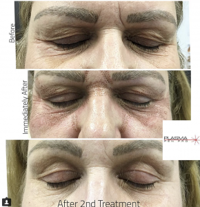 Plasma Pen Pro (PPP) Eyelid and Eyebrow Lift Before and After