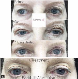 Plamere Plasma Fibroblast Eyelid Lift Treatment by Plasma Pen Pro (PPP)