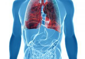 Global Lung Cancer Surgery Market
