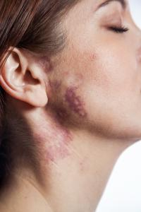 Person with disfiguring Port Wine Birthmark on her neck